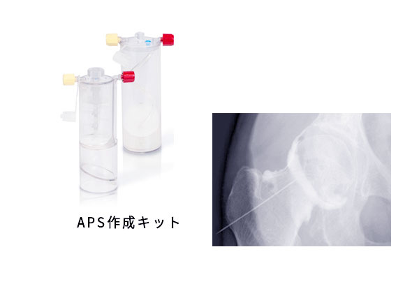 APSキット
